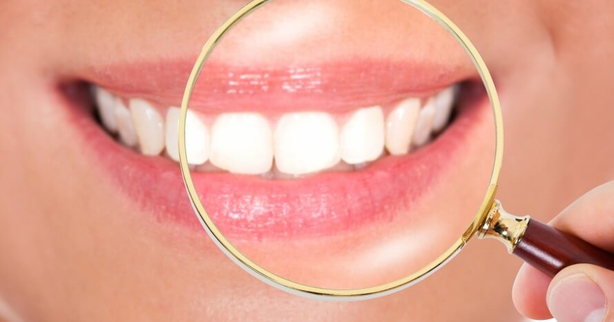 12579280-female-teeth-checked-with-magnifying-glass